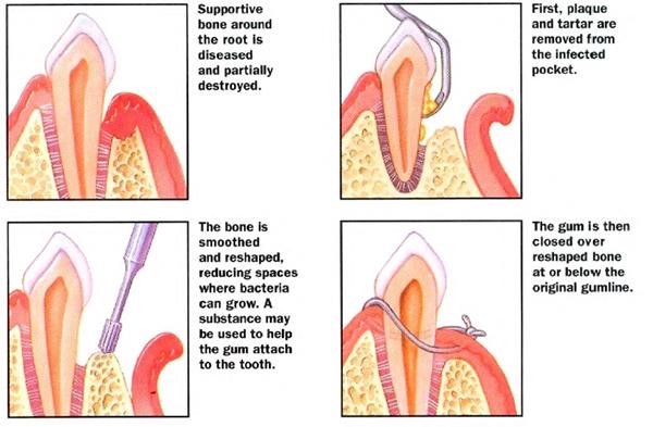 Periodontal Exams Dr Hector E Pinero Dmd Periodontist